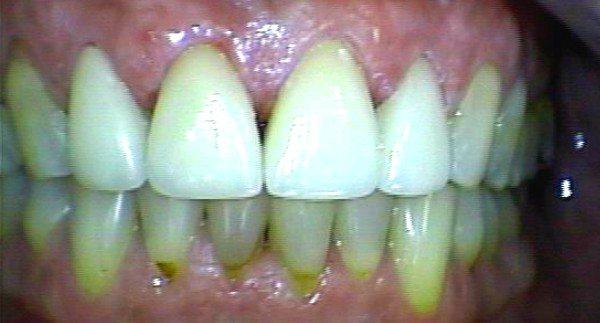 dr-felix-odontologia-faceta-laminada-antes-depois-02