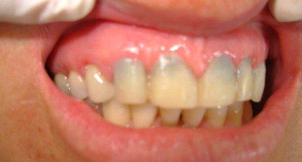dr-felix-odontologia-faceta-porcelana-antes-depois-01