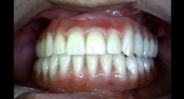 dr-felix-odontologia-implante-antes-depois-02