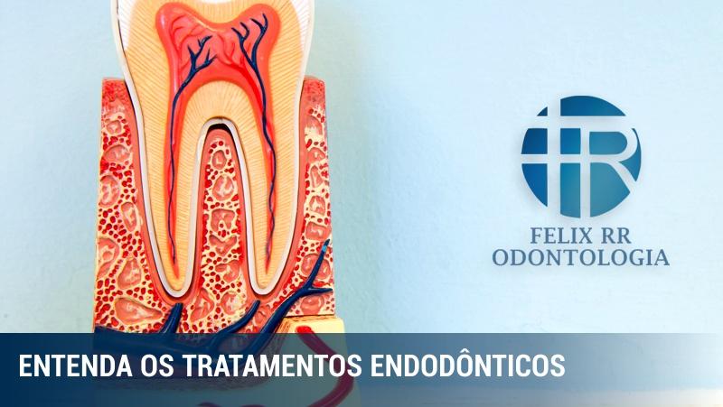O que são e como funcionam os tratamentos endodônticos?