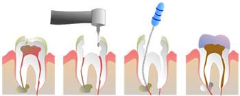 DRFELIX - tratamento endodontico - 2 - como funciona o tratamento